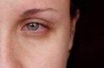 agak-mirip-apa-bedanya-mata-merah-dengan-gejala-covid-19-halodoc