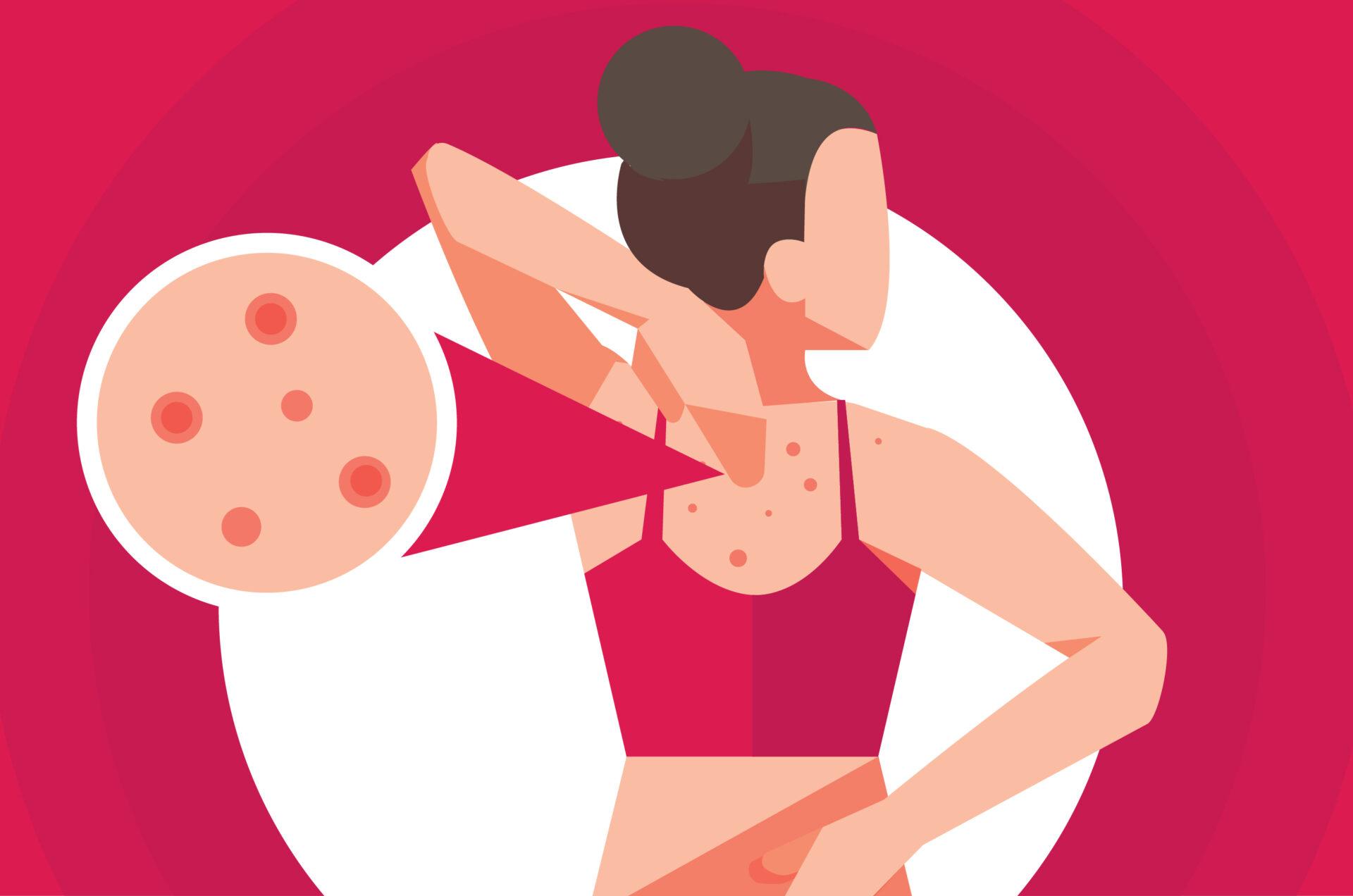Ini 4 Penyebab Munculnya Jerawat di Badan