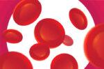 Mengenal Lebih Jauh Mengenai Tahapan Kanker Darah