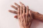 Tidak Sama, Ini Bedanya Parkinson dengan Parkinsonisme