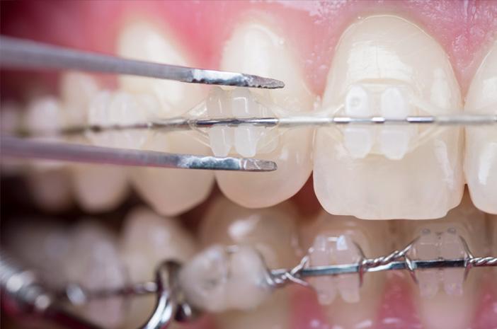 Perawatan Gigi yang Benar untuk Pengguna Behel Keramik