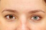 bisakah-kelainan-mata-heterochromia-disembuhkan-halodoc