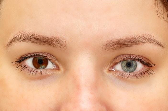 Bisakah Kelainan Mata Heterochromia Disembuhkan?