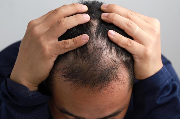 Pria Perlu Tahu, Ini Cara Menebalkan Rambut Tipis