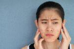 Cara Menghilangkan Fungal Acne Tanpa Obat