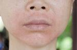 mengenal-perioral-dermatitis-dan-gejalanya-halodoc